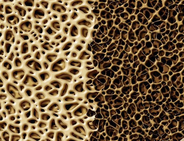 Остеопения и остеопороз