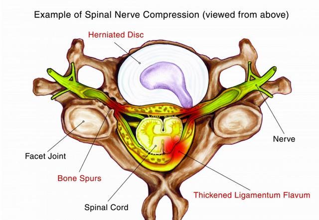 Распространенные причины сдавления спинного нерва включают грыжу межпозвонкового диска и костные шпоры