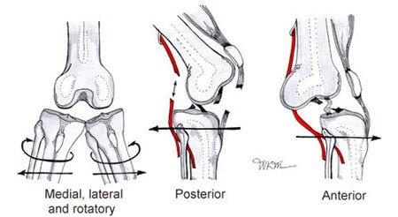 Картина вывихов колена плюс повреждения связок и артерий.