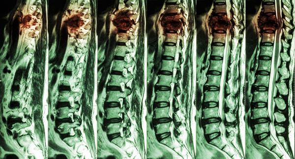 Компрессионные переломы позвонков   симптомы