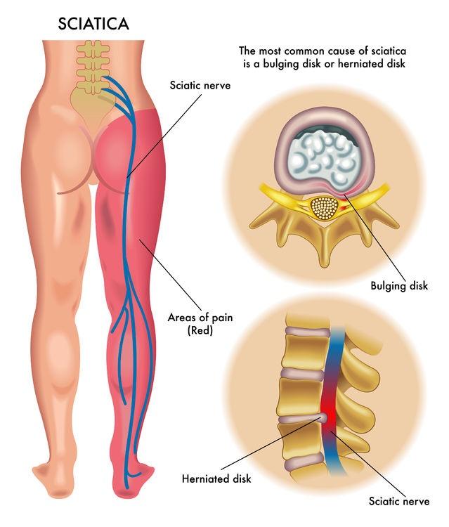 Особенности боли в седалищном нерве