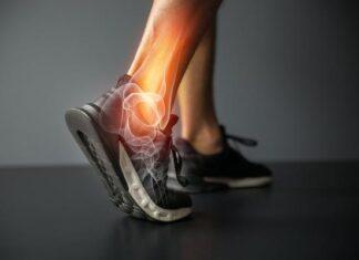 Травмы лодыжки   причины