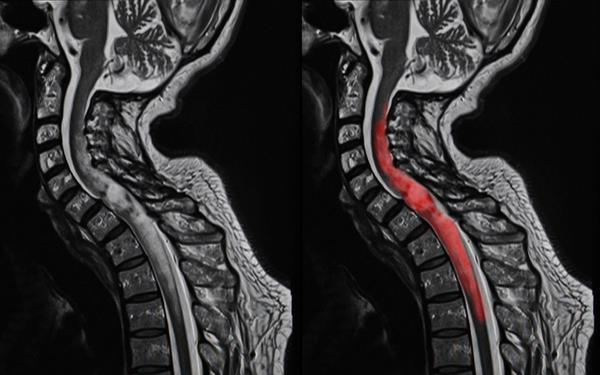Опухоли позвоночника   МРТ