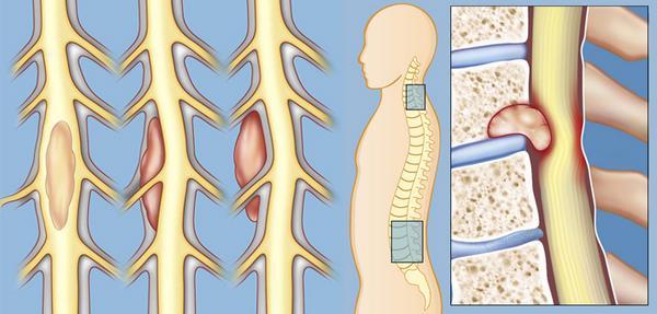 Опухоли позвоночника