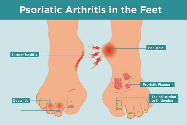 Псориатический артрит (2)