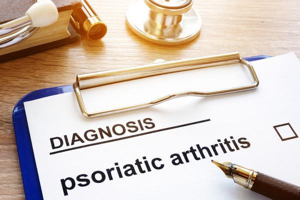 Псориатический артрит   дмагноз
